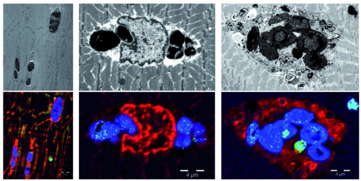 Yeni kas hastalığı miyoglobinopati