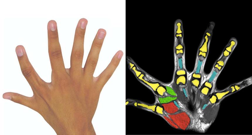 fazla parmaklar 6 parmaklı insanlar