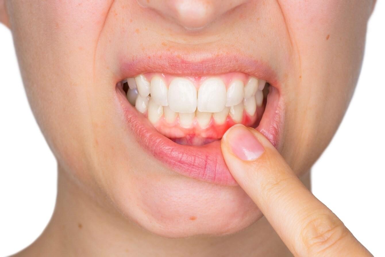 diş eti rahatsızlıkları