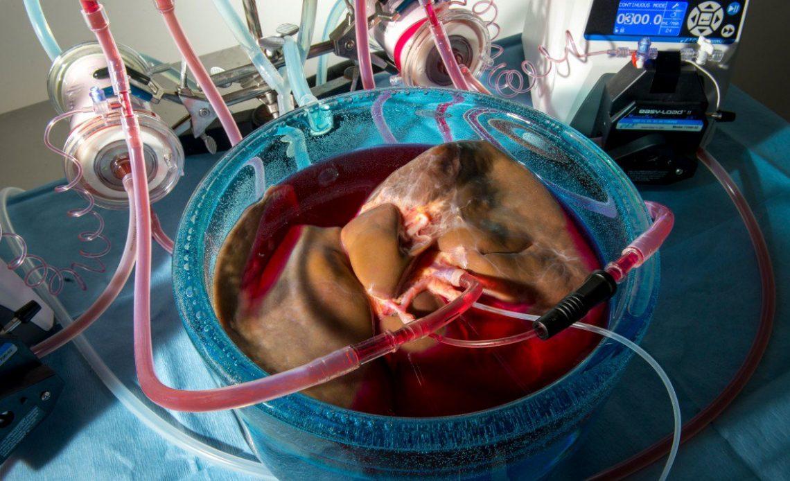 karaciğer nakli için gelişme