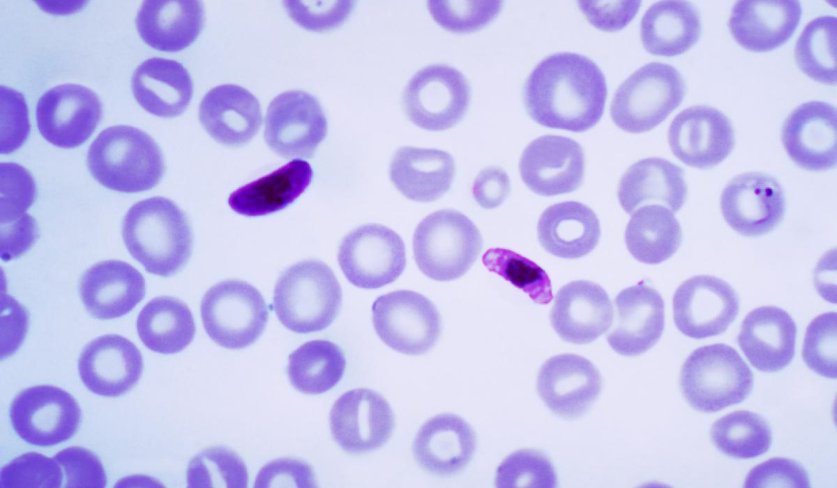 sıtma paraziti Plasmodium falciparum nasıl hayatta kalıyor